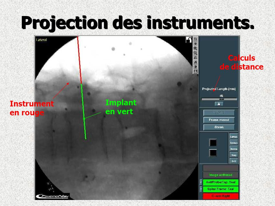 Projection des instruments. Instrument en rouge Implant en vert Calculs de distance
