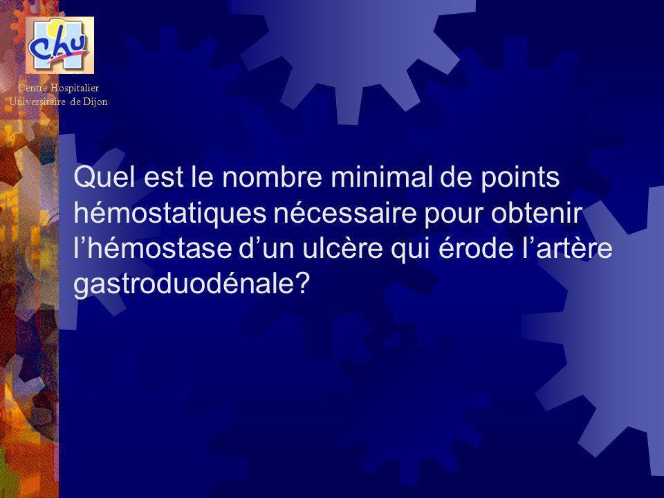 Quel est le nombre minimal de points hémostatiques nécessaire pour obtenir lhémostase dun ulcère qui érode lartère gastroduodénale? Centre Hospitalier