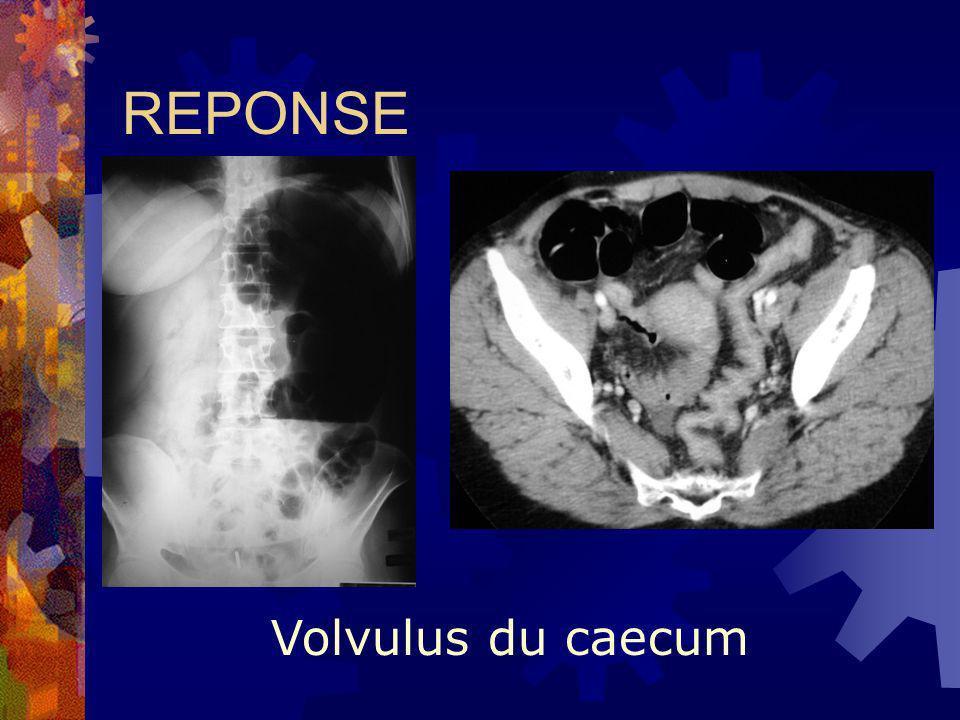 REPONSE Volvulus du caecum