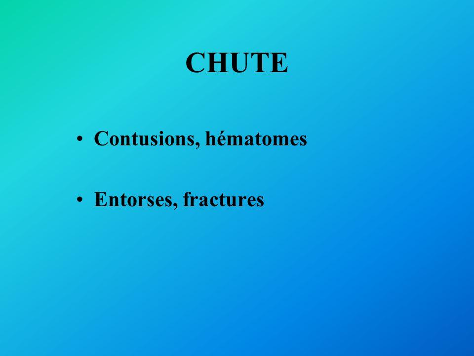 CHUTE Contusions, hématomes Entorses, fractures