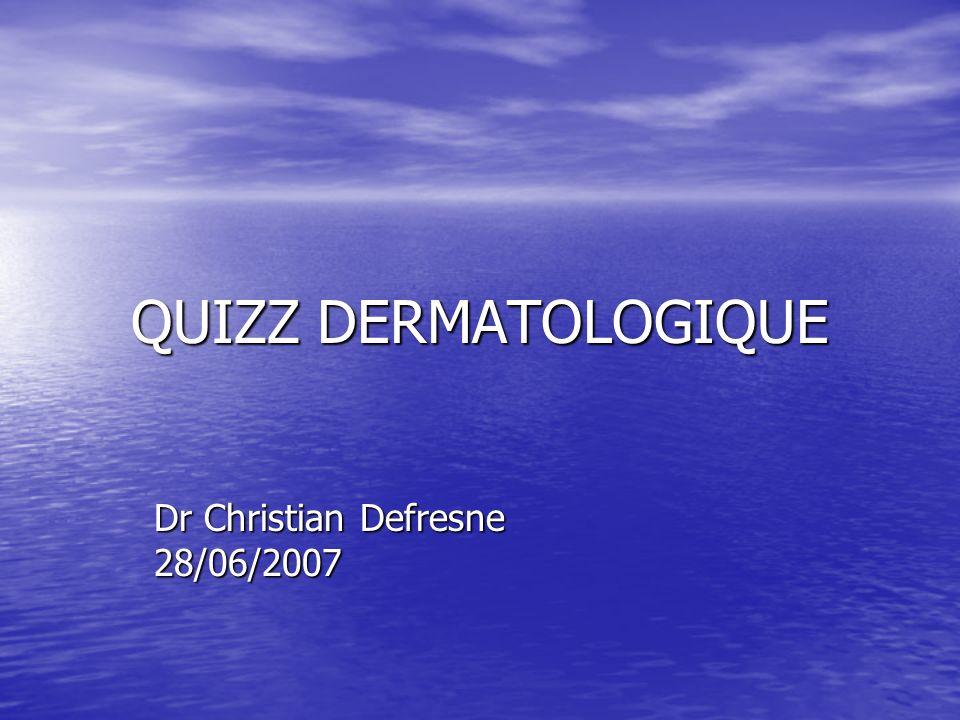 QUIZZ DERMATOLOGIQUE Dr Christian Defresne 28/06/2007