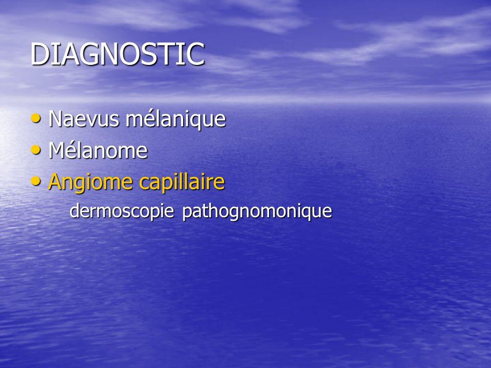 DIAGNOSTIC Naevus mélanique Naevus mélanique Mélanome Mélanome Angiome capillaire Angiome capillaire dermoscopie pathognomonique