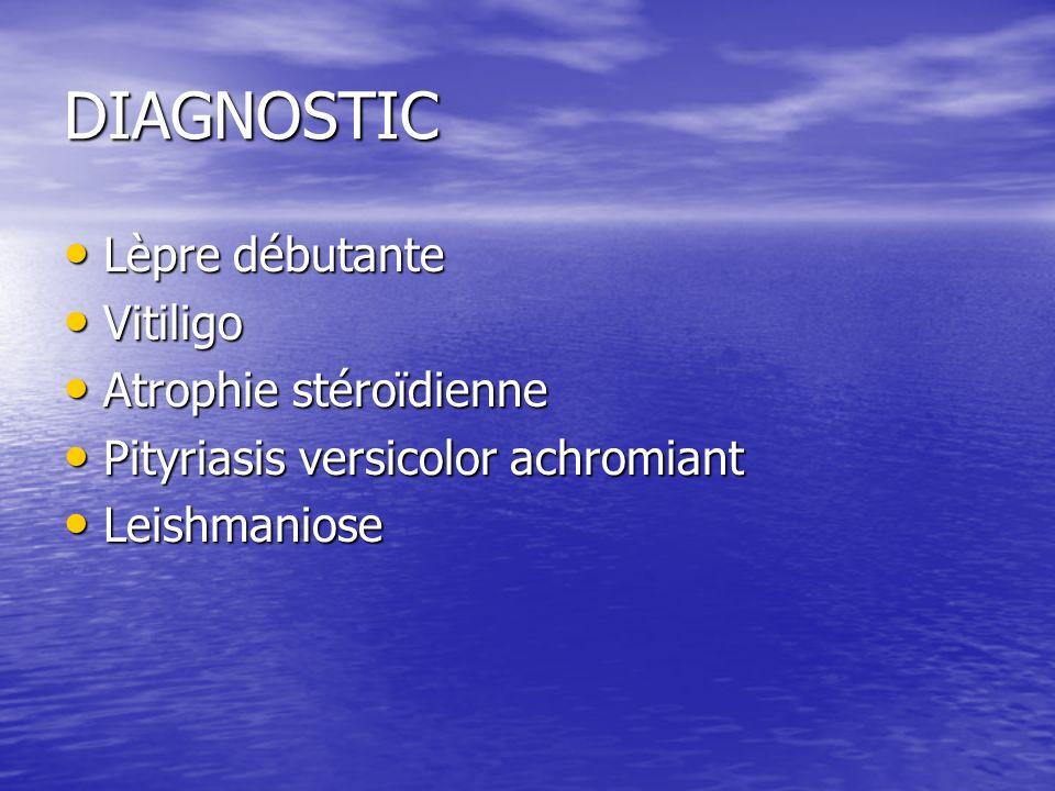 DIAGNOSTIC Lèpre débutante Lèpre débutante Vitiligo Vitiligo Atrophie stéroïdienne Atrophie stéroïdienne Pityriasis versicolor achromiant Pityriasis versicolor achromiant Leishmaniose Leishmaniose