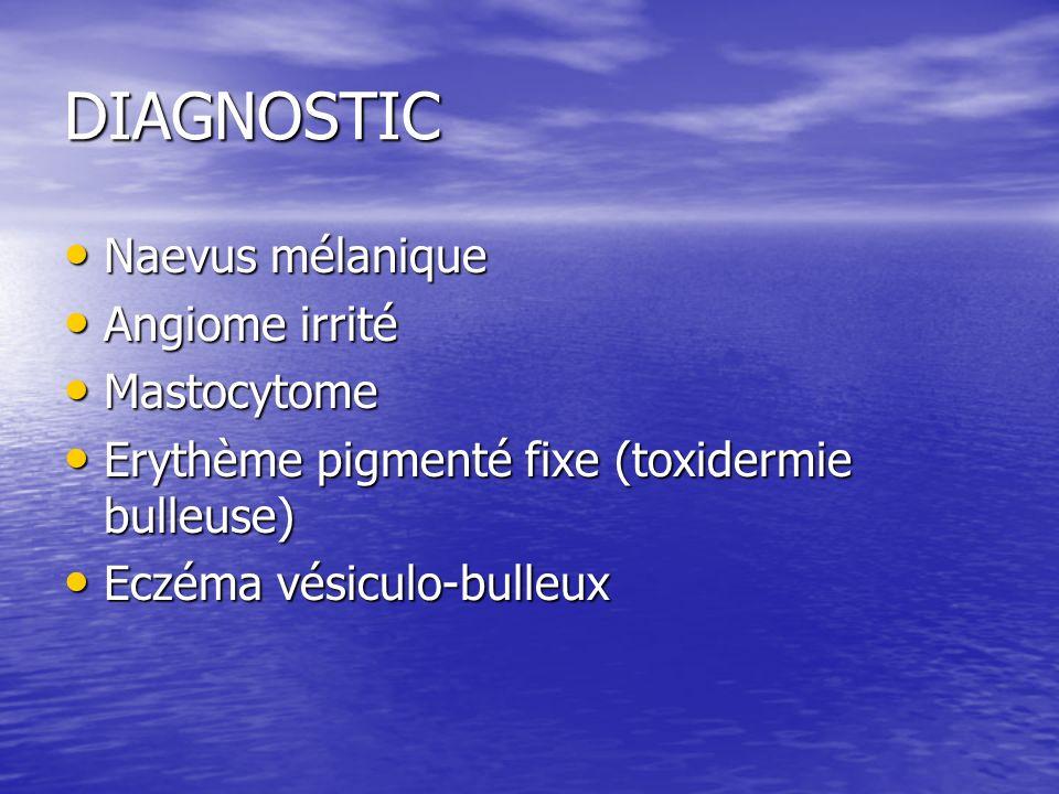 DIAGNOSTIC Naevus mélanique Naevus mélanique Angiome irrité Angiome irrité Mastocytome Mastocytome Erythème pigmenté fixe (toxidermie bulleuse) Erythème pigmenté fixe (toxidermie bulleuse) Eczéma vésiculo-bulleux Eczéma vésiculo-bulleux