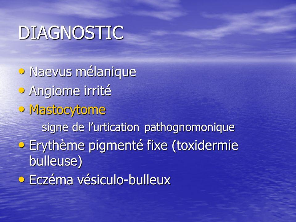 DIAGNOSTIC Naevus mélanique Naevus mélanique Angiome irrité Angiome irrité Mastocytome Mastocytome signe de lurtication pathognomonique Erythème pigmenté fixe (toxidermie bulleuse) Erythème pigmenté fixe (toxidermie bulleuse) Eczéma vésiculo-bulleux Eczéma vésiculo-bulleux