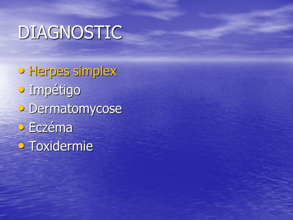 DIAGNOSTIC Herpes simplex Herpes simplex Impétigo Impétigo Dermatomycose Dermatomycose Eczéma Eczéma Toxidermie Toxidermie