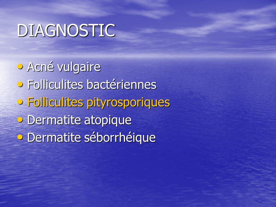 DIAGNOSTIC Acné vulgaire Acné vulgaire Folliculites bactériennes Folliculites bactériennes Folliculites pityrosporiques Folliculites pityrosporiques Dermatite atopique Dermatite atopique Dermatite séborrhéique Dermatite séborrhéique