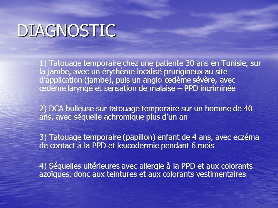 DIAGNOSTIC 1) Tatouage temporaire chez une patiente 30 ans en Tunisie, sur la jambe, avec un érythème localisé prurigineux au site dapplication (jambe), puis un angio-œdème sévère, avec œdème laryngé et sensation de malaise – PPD incriminée 2) DCA bulleuse sur tatouage temporaire sur un homme de 40 ans, avec séquelle achromique plus dun an 3) Tatouage temporaire (papillon) enfant de 4 ans, avec eczéma de contact à la PPD et leucodermie pendant 6 mois 4) Séquelles ultérieures avec allergie à la PPD et aux colorants azoïques, donc aux teintures et aux colorants vestimentaires