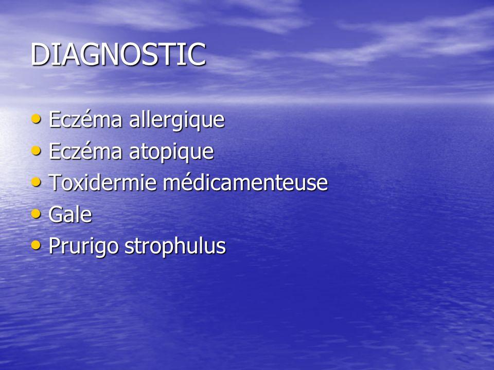 DIAGNOSTIC Eczéma allergique Eczéma allergique Eczéma atopique Eczéma atopique Toxidermie médicamenteuse Toxidermie médicamenteuse Gale Gale Prurigo strophulus Prurigo strophulus