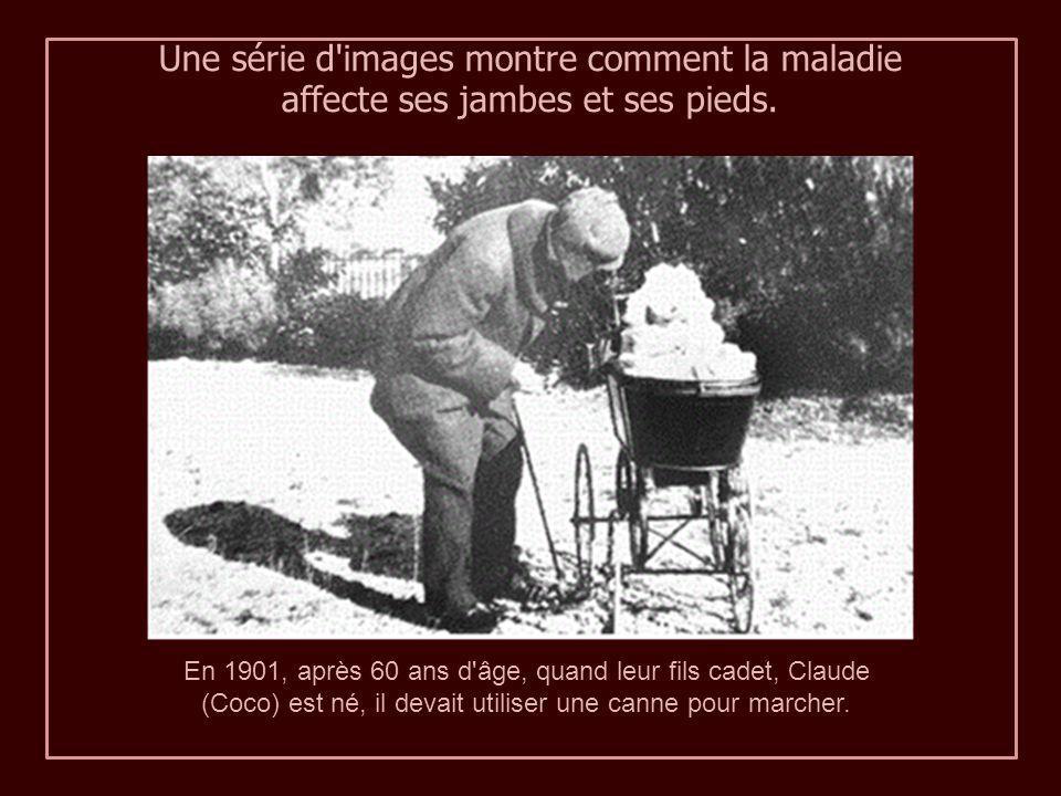 1896 Renoir, 55 ans. Scruter l'image, vous pouvez afficher l'enflure des articulations métacarpophalangiennes. 1903, nous voyons que l'arthrite a pris