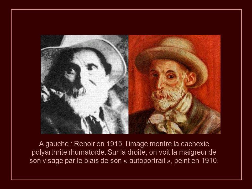 1915 Renoir avec ses chaussures de laine en raison d'une grave déformation des pieds. Larthrite grave lui a causé une douleur terrible. Os penché et c