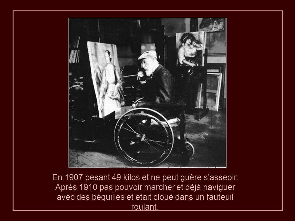 A gauche : Renoir en 1915, l'image montre la cachexie polyarthrite rhumatoïde. Sur la droite, on voit la maigreur de son visage par le biais de son «
