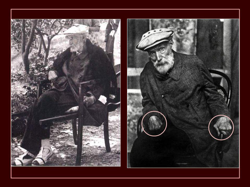 1917, Renoir à Cagnes-sur-Mer dans le jardin. Lorsque il doit aller aux endroits où il est difficile d'entrer avec un fauteuil roulant, il est porté p