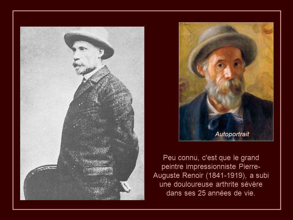 Peu connu, c est que le grand peintre impressionniste Pierre- Auguste Renoir (1841-1919), a subi une douloureuse arthrite sévère dans ses 25 années de vie.