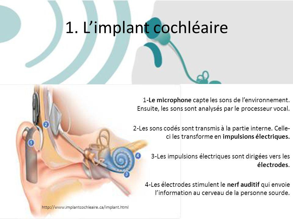 1. Limplant cochléaire 1-Le microphone capte les sons de lenvironnement. Ensuite, les sons sont analysés par le processeur vocal. 2-Les sons codés son