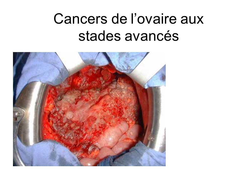 Cancers de lovaire aux stades avancés