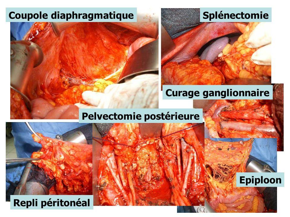 Coupole diaphragmatiqueSplénectomie Curage ganglionnaire Epiploon Pelvectomie postérieure Repli péritonéal