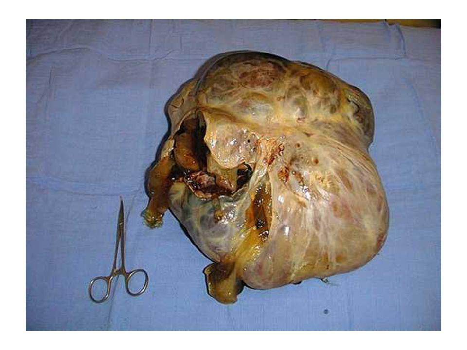 Risque de rupture des kystes ovariens Coelioscopie:53% (Camatte 2004) Laparotomie versus Coelioscopie: –12% versus 34% (Fauvet 2005) –Risque supérieur en laparoscopie (Maneo 2004) –surtout au-delà de 5 cm (Maneo 2004).
