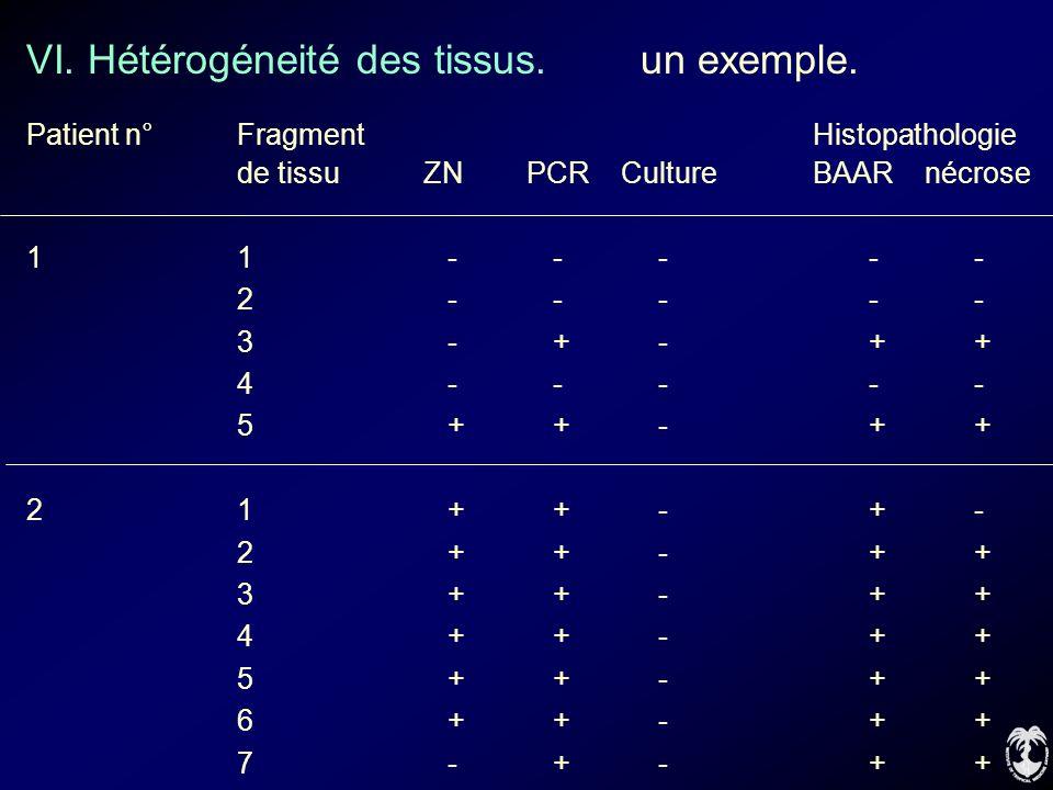 VI. Hétérogéneité des tissus. un exemple. Patient n°Fragment Histopathologie de tissu ZN PCR Culture BAAR nécrose 11----- 2----- 3-+-++ 4----- 5++-++