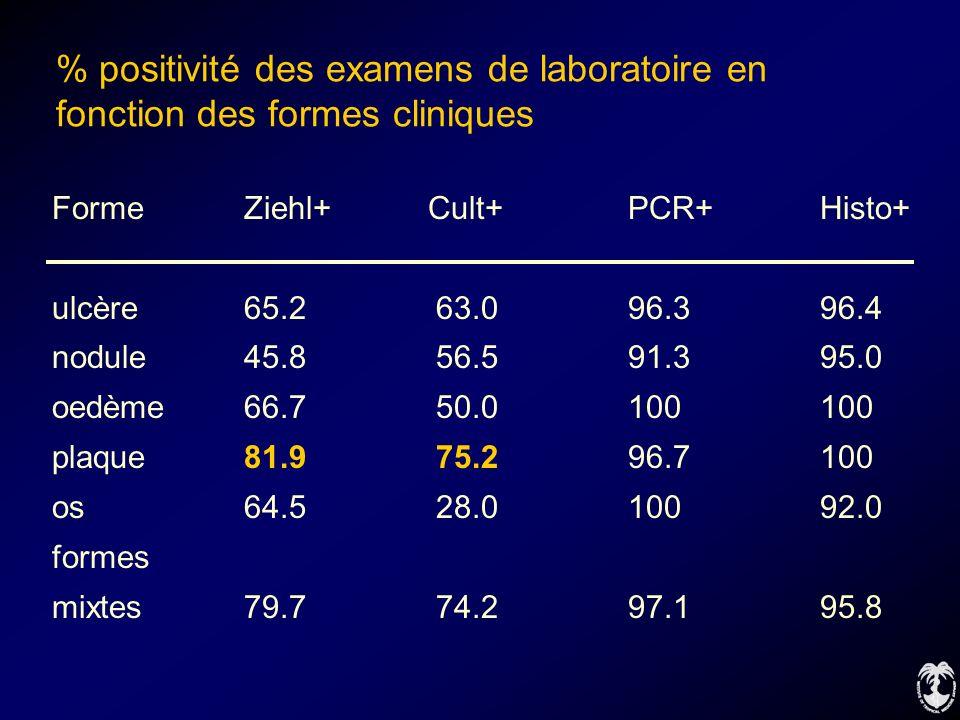 % positivité des examens de laboratoire en fonction des formes cliniques FormeZiehl+ Cult+PCR+Histo+ ulcère65.263.096.396.4 nodule45.856.591.395.0 oed