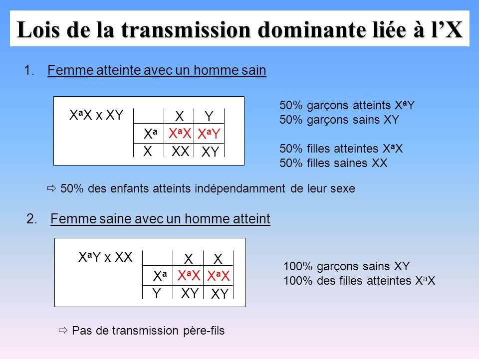 Lois de la transmission dominante liée à lX X a X x XY XaXXaX XX XY X XaXa XY 1.Femme atteinte avec un homme sain XaYXaY 50% garçons atteints X a Y 50
