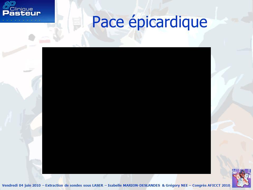 Vendredi 04 juin 2010 – Extraction de sondes sous LASER – Isabelle MARION-DESLANDES & Grégory NEE – Congrès AFICCT 2010 Pace épicardique