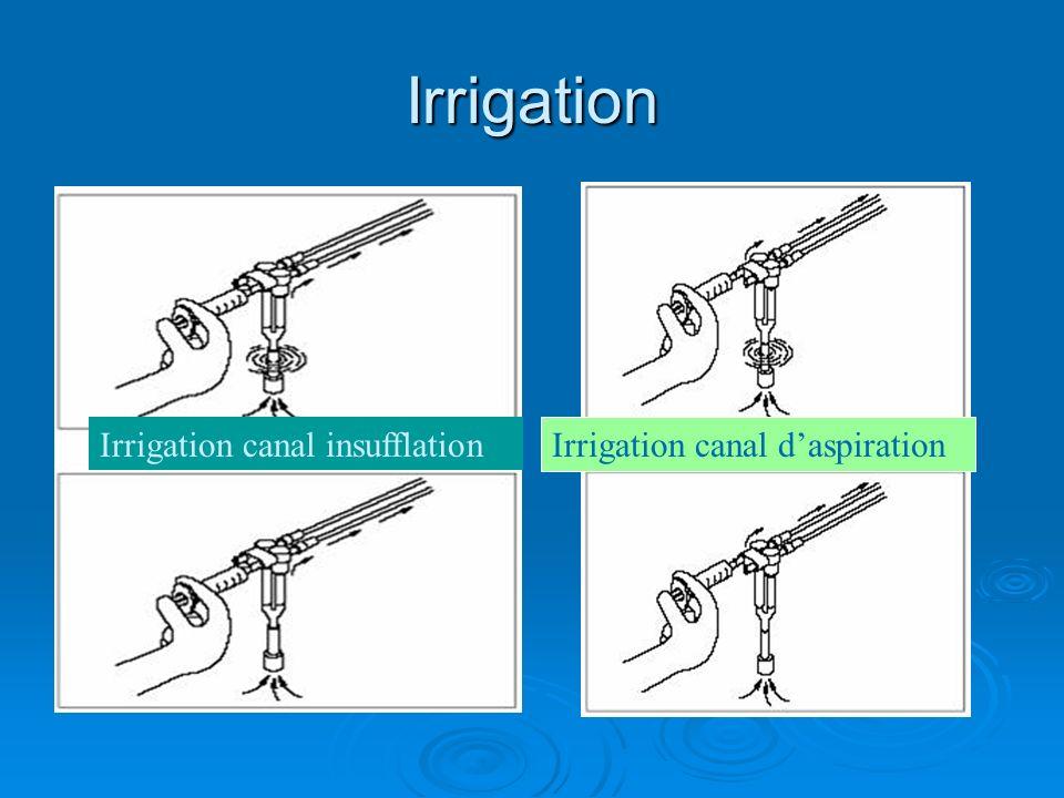 Irrigation Irrigation canal insufflation Irrigation canal daspiration
