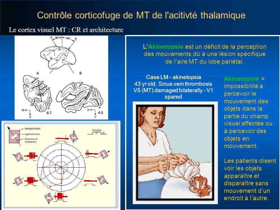 Contrôle corticofuge de MT de l'acitivté thalamique Akinetopsie = impossibilité à percevoir le mouvement des objets dans la partie du champ visuel aff