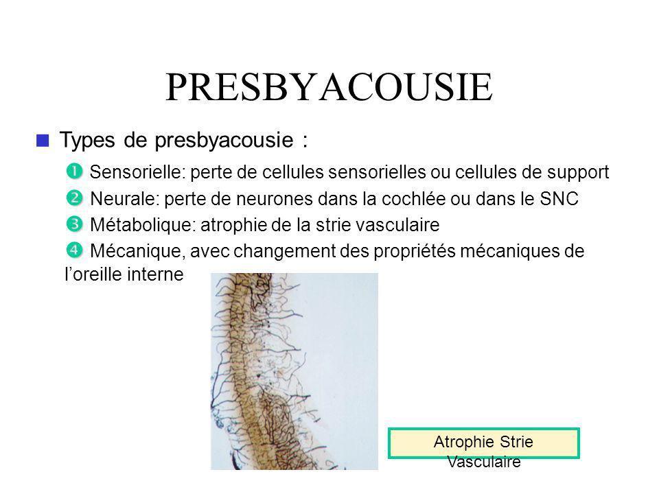 PRESBYACOUSIE Types de presbyacousie : Sensorielle: perte de cellules sensorielles ou cellules de support Neurale: perte de neurones dans la cochlée ou dans le SNC Métabolique: atrophie de la strie vasculaire Mécanique, avec changement des propriétés mécaniques de loreille interne Atrophie Strie Vasculaire