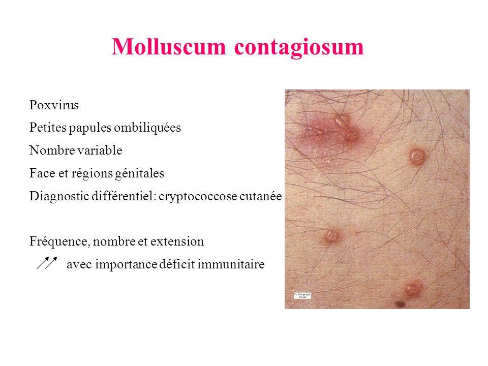 Molluscum contagiosum Poxvirus Petites papules ombiliquées Nombre variable Face et régions génitales Diagnostic différentiel: cryptococcose cutanée Fr