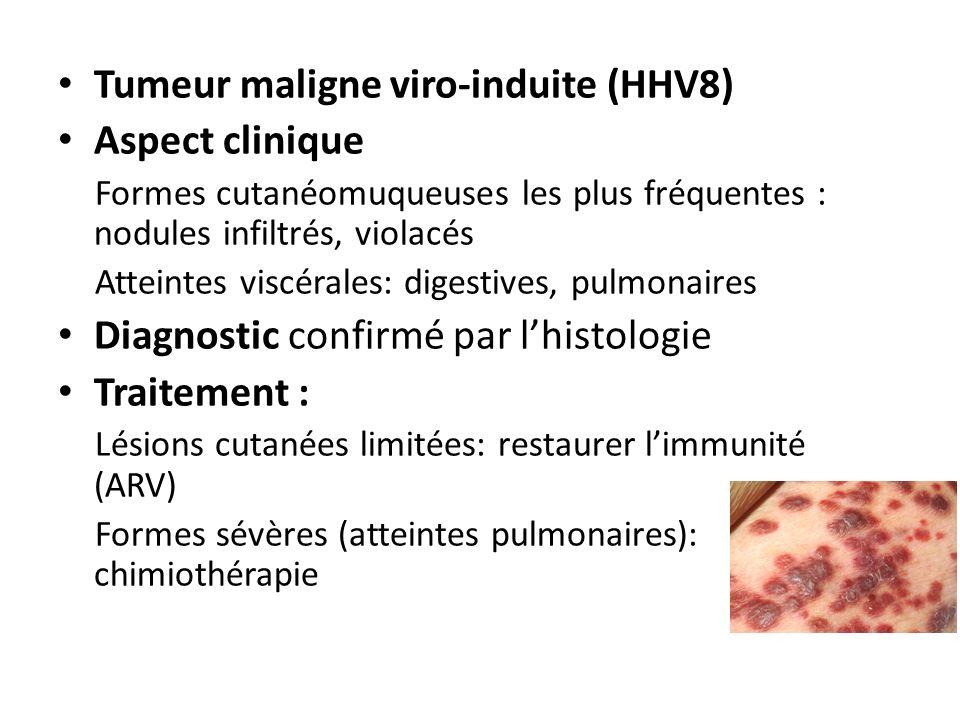 Tumeur maligne viro-induite (HHV8) Aspect clinique Formes cutanéomuqueuses les plus fréquentes : nodules infiltrés, violacés Atteintes viscérales: dig