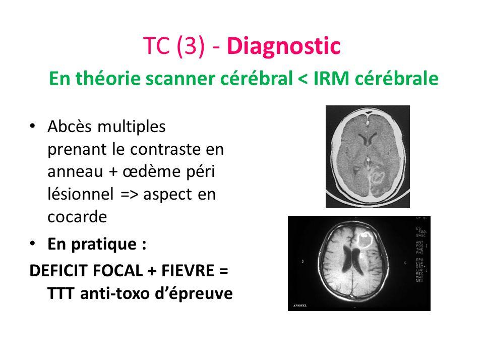 TC (3) - Diagnostic Abcès multiples prenant le contraste en anneau + œdème péri lésionnel => aspect en cocarde En pratique : DEFICIT FOCAL + FIEVRE =