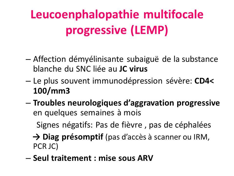 Leucoenphalopathie multifocale progressive (LEMP) – Affection démyélinisante subaiguë de la substance blanche du SNC liée au JC virus – Le plus souven