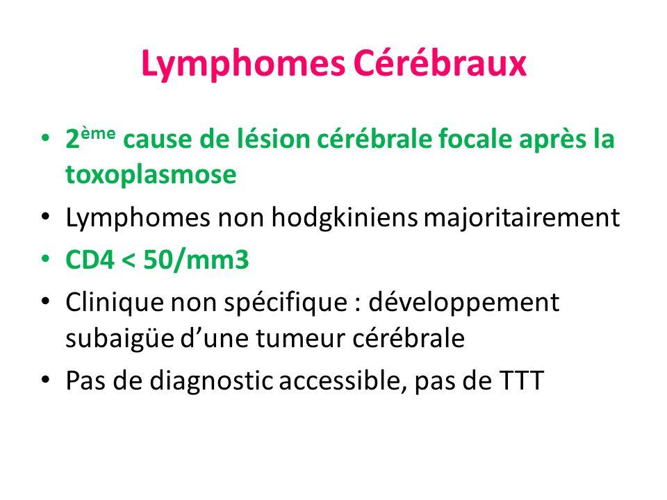 Lymphomes Cérébraux 2 ème cause de lésion cérébrale focale après la toxoplasmose Lymphomes non hodgkiniens majoritairement CD4 < 50/mm3 Clinique non s