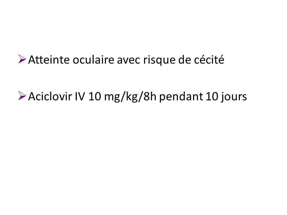 Atteinte oculaire avec risque de cécité Aciclovir IV 10 mg/kg/8h pendant 10 jours