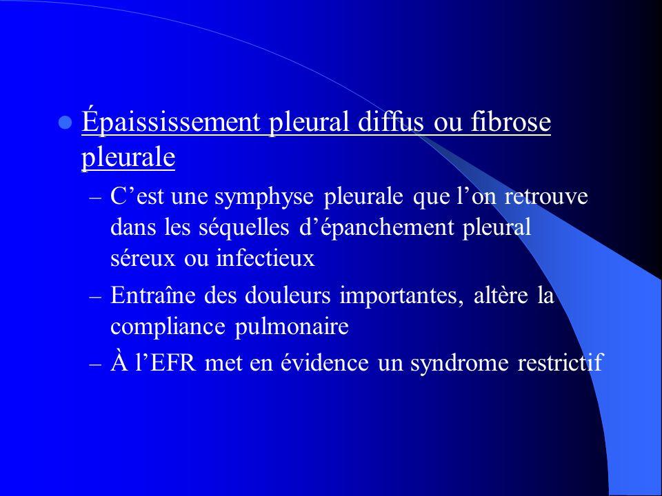 Épaississement pleural diffus ou fibrose pleurale – Cest une symphyse pleurale que lon retrouve dans les séquelles dépanchement pleural séreux ou infe