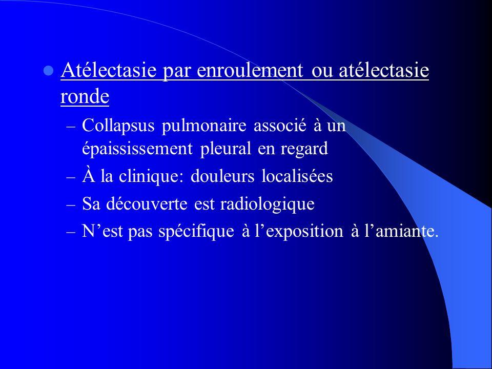 Atélectasie par enroulement ou atélectasie ronde – Collapsus pulmonaire associé à un épaississement pleural en regard – À la clinique: douleurs locali