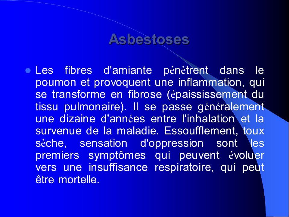 Asbestoses Asbestoses Les fibres d'amiante p é n è trent dans le poumon et provoquent une inflammation, qui se transforme en fibrose ( é paississement