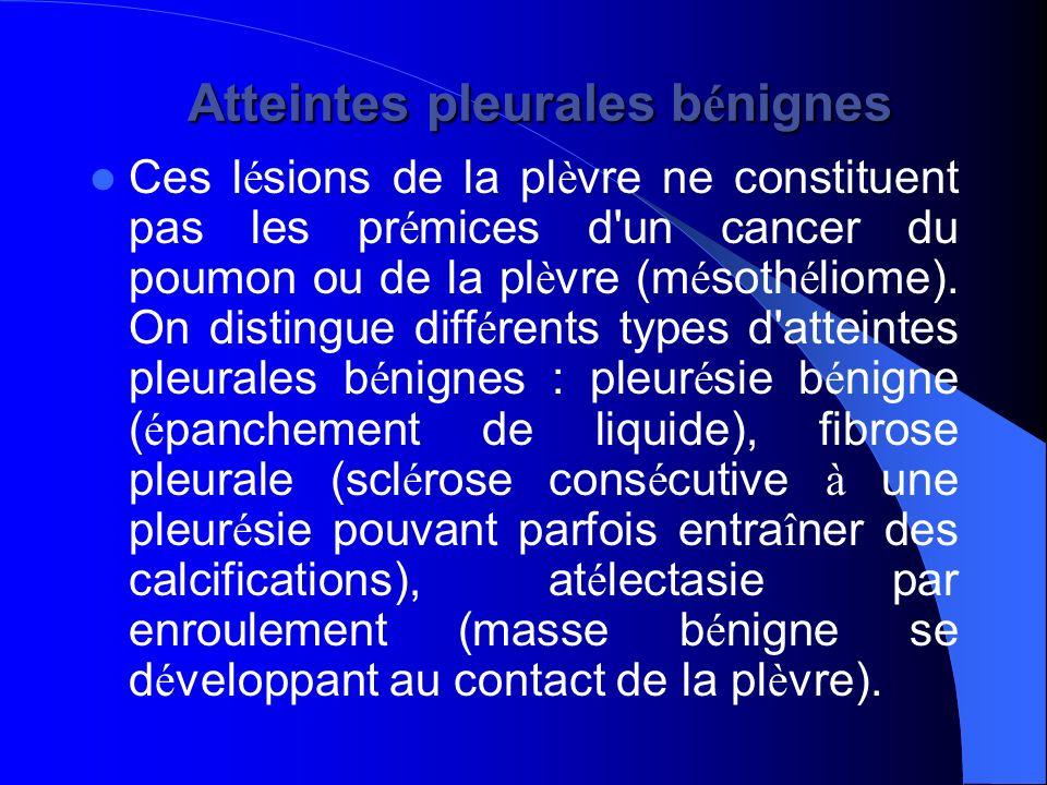 Atteintes pleurales b é nignes Atteintes pleurales b é nignes Ces l é sions de la pl è vre ne constituent pas les pr é mices d'un cancer du poumon ou