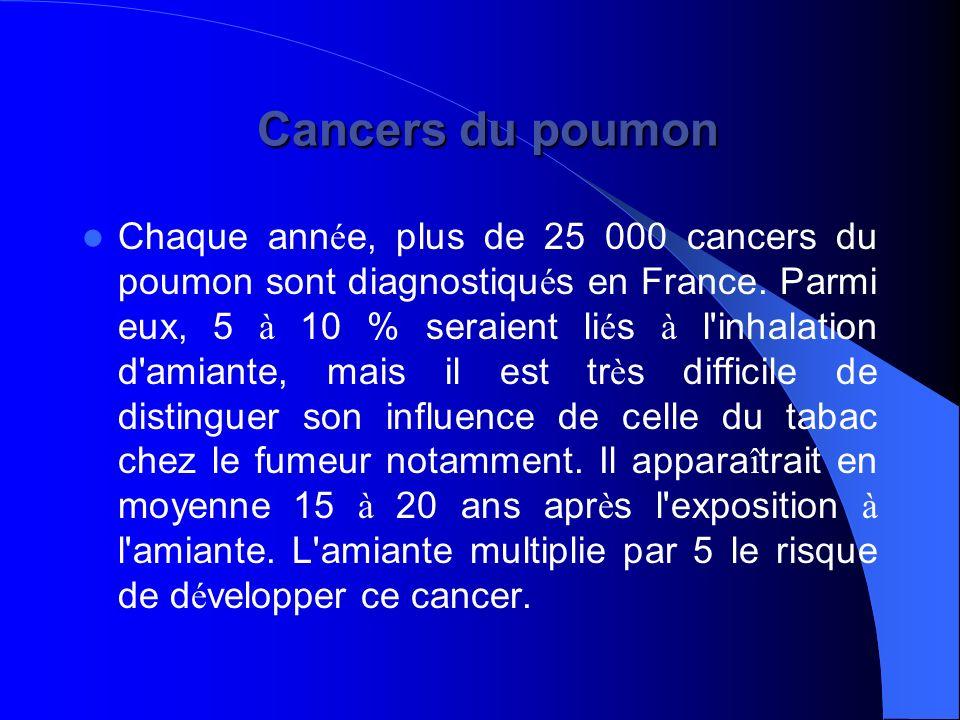 Cancers du poumon Cancers du poumon Chaque ann é e, plus de 25 000 cancers du poumon sont diagnostiqu é s en France. Parmi eux, 5 à 10 % seraient li é