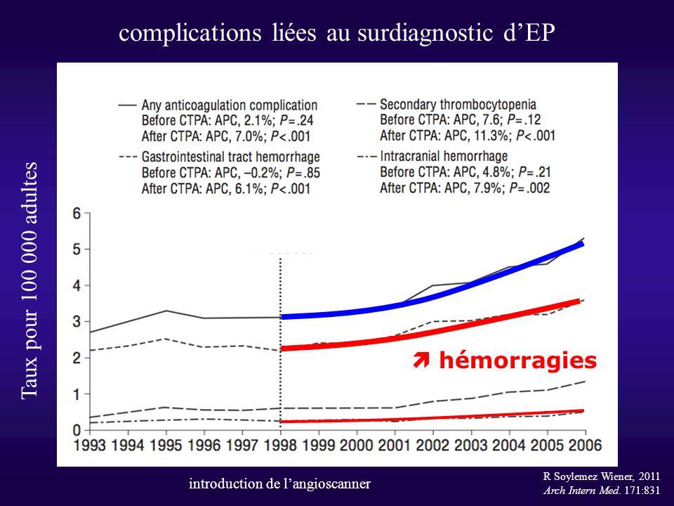 complications liées au surdiagnostic dEP R Soylemez Wiener, 2011 Arch Intern Med. 171:831 Taux pour 100 000 adultes introduction de langioscanner hémo