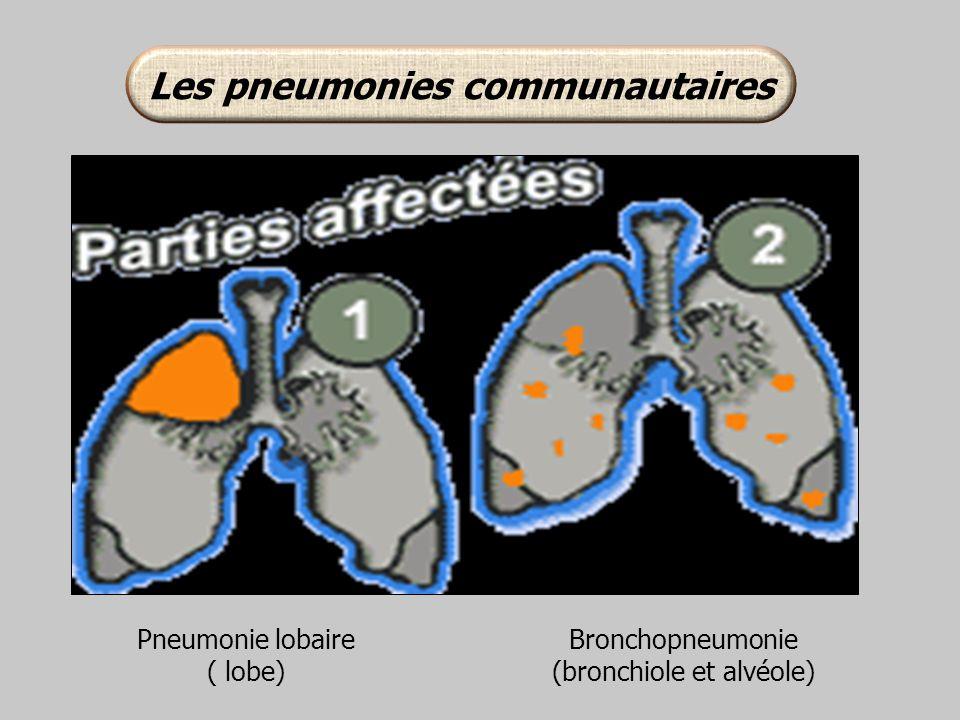 Pneumonie lobaire ( lobe) Bronchopneumonie (bronchiole et alvéole)