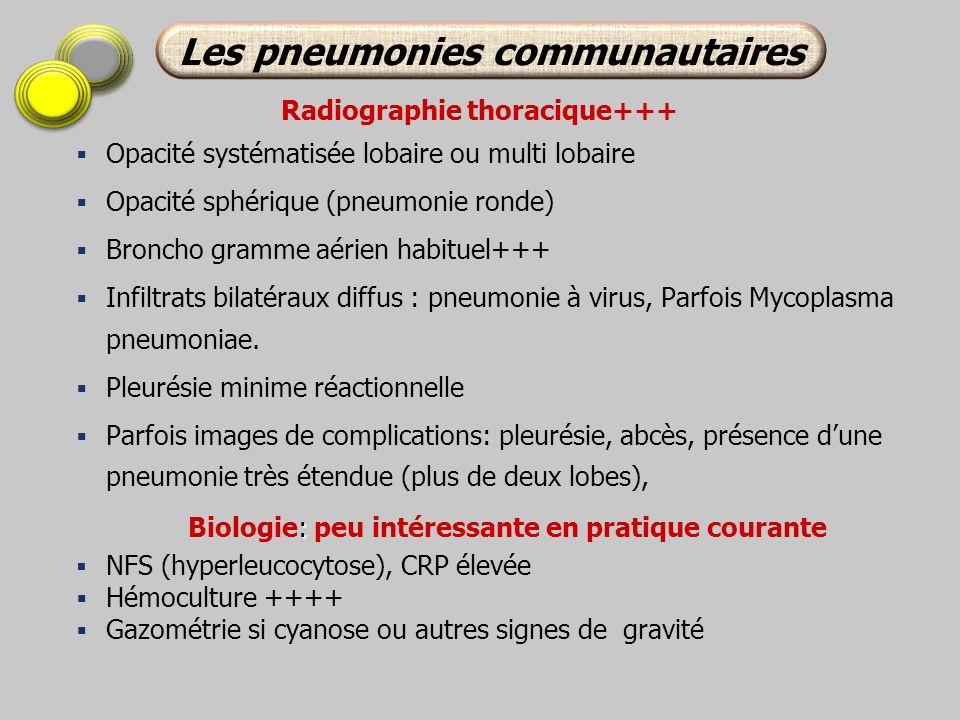 Radiographie thoracique+++ Opacité systématisée lobaire ou multi lobaire Opacité sphérique (pneumonie ronde) Broncho gramme aérien habituel+++ Infiltr