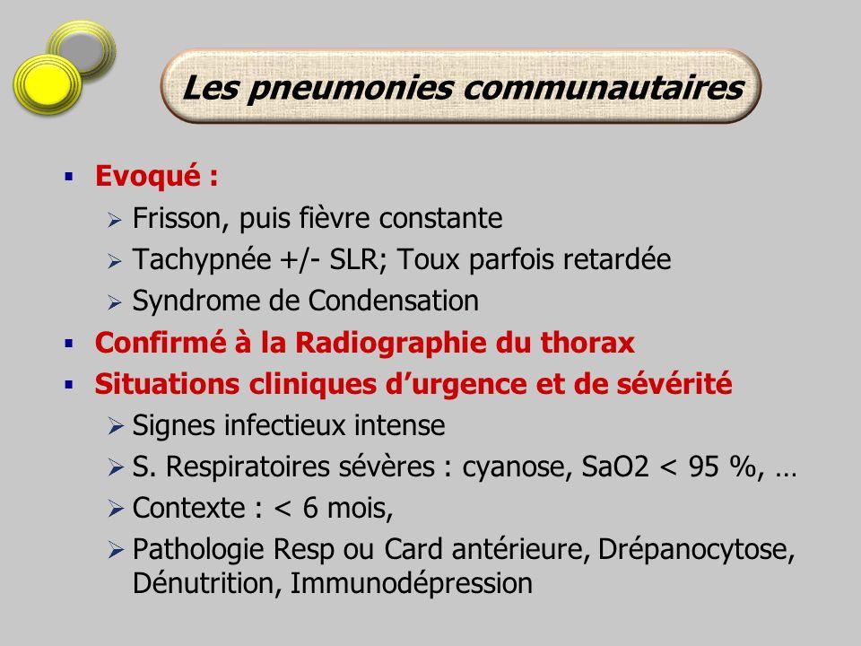 Evoqué : Frisson, puis fièvre constante Tachypnée +/- SLR; Toux parfois retardée Syndrome de Condensation Confirmé à la Radiographie du thorax Situati