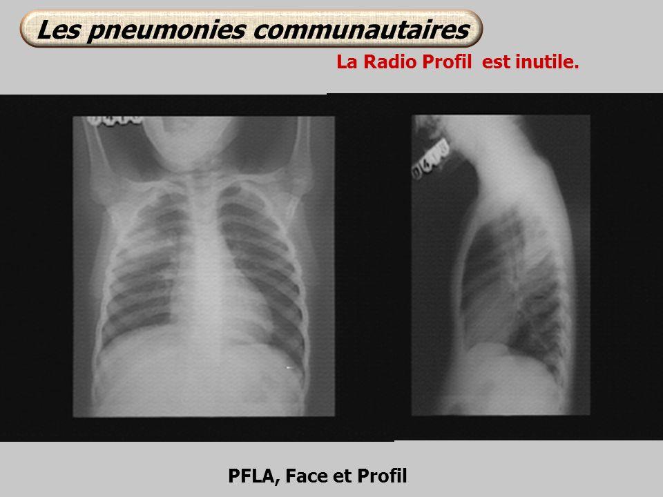 PFLA, Face et Profil La Radio Profil est inutile. Les pneumonies communautaires