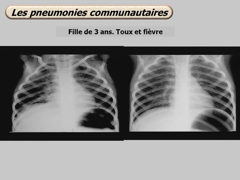Fille de 3 ans. Toux et fièvre Les pneumonies communautaires