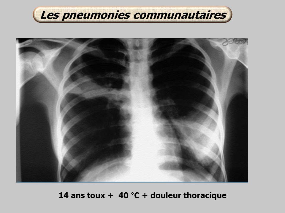 14 ans toux + 40 °C + douleur thoracique Les pneumonies communautaires