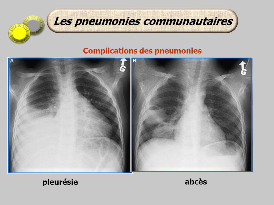pleurésie abcès Les pneumonies communautaires Complications des pneumonies