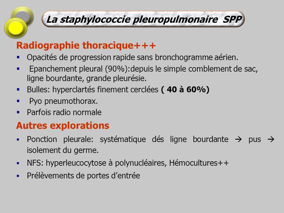 Radiographie thoracique+++ Opacités de progression rapide sans bronchogramme aérien. Epanchement pleural (90%):depuis le simple comblement de sac, lig