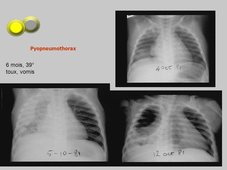 6 mois, 39° toux, vomis Pyopneumothorax